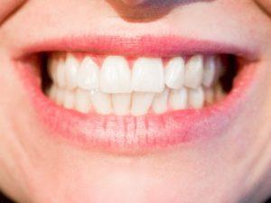 口 歯並び